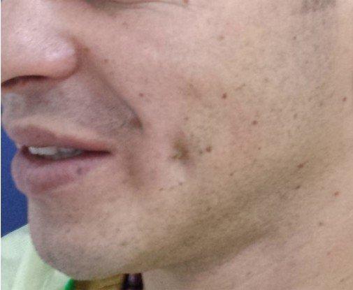 Gropite in obraji Cheek chin Dimples Postoperator
