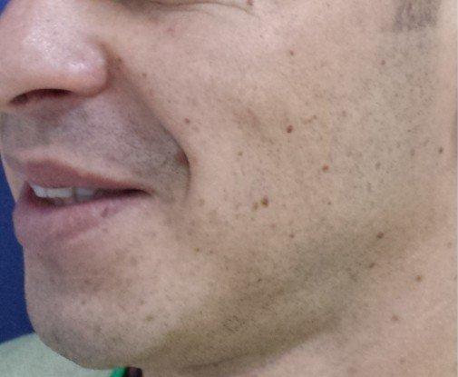 Gropite in obraji Cheek chin Dimples Preoperator