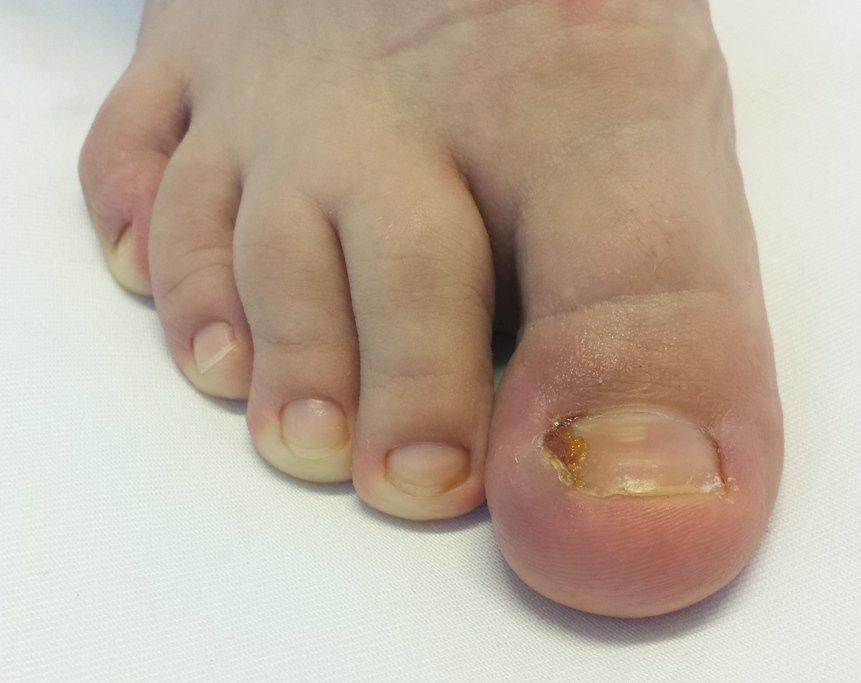 Inflamație în articulația degetului de la picior. Producători de condroitină glucozamină