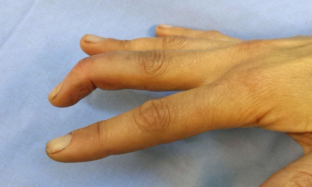 Deget in ciocan acut Mallet finger