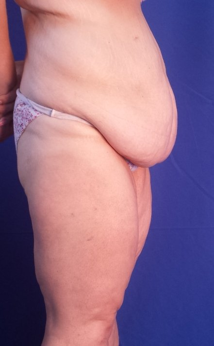 Abdominoplastia Sort abdominal