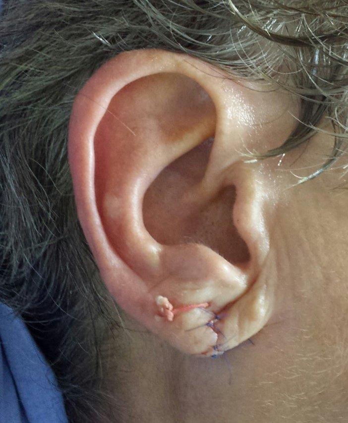 Lobul urechii Despicat imediat postoperator