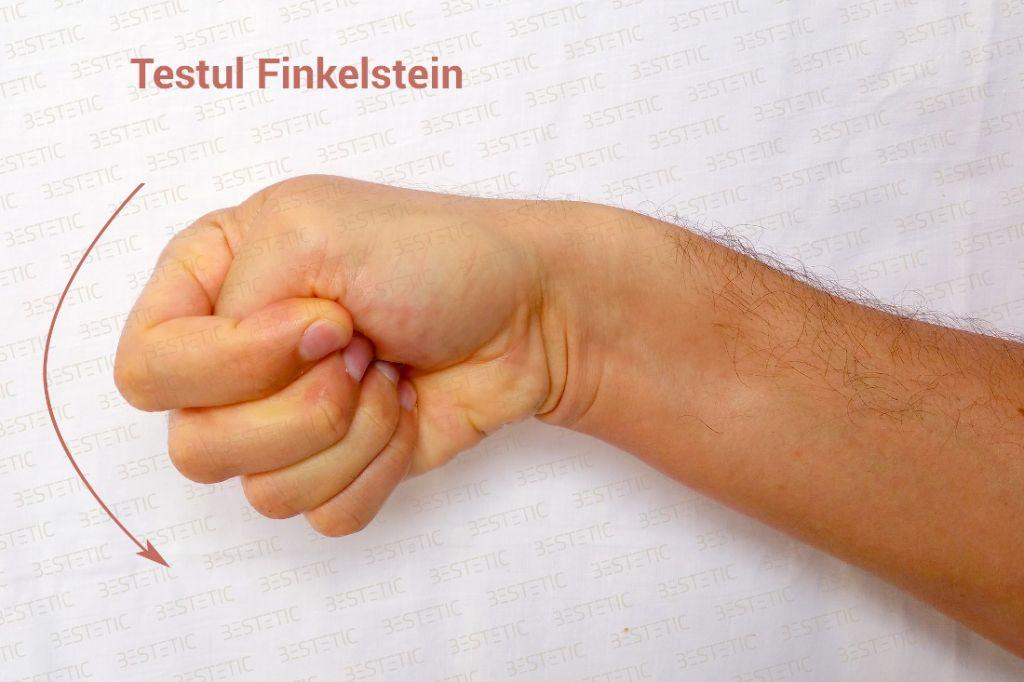 Testul Finkelstain De Quervain