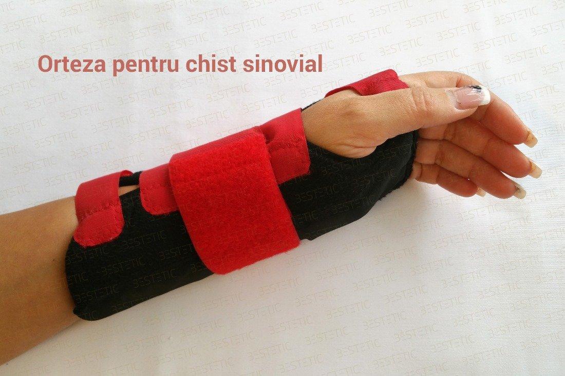 fizioterapie pt chist sinovial)