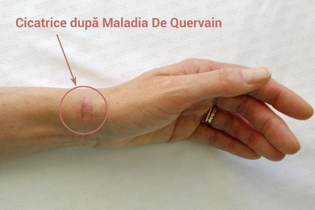 Cicatrice dupa operatia De Quervain
