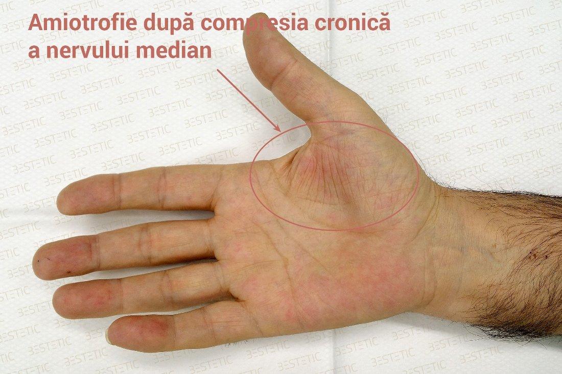 cauzele amortelii degetelor de la maini)