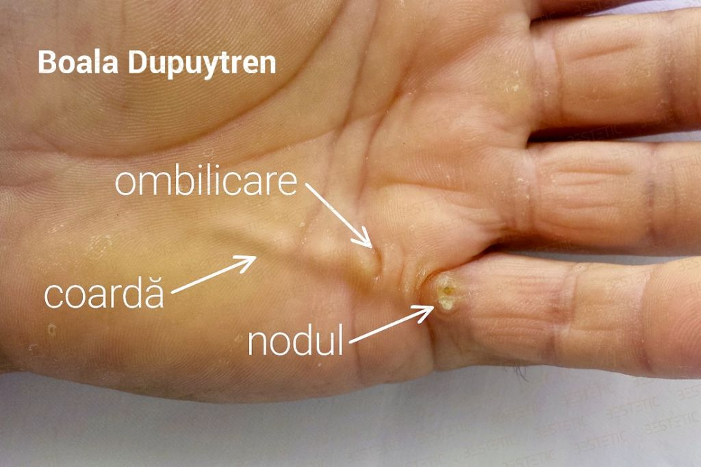 Maladia Dupuytren boala cauze pret