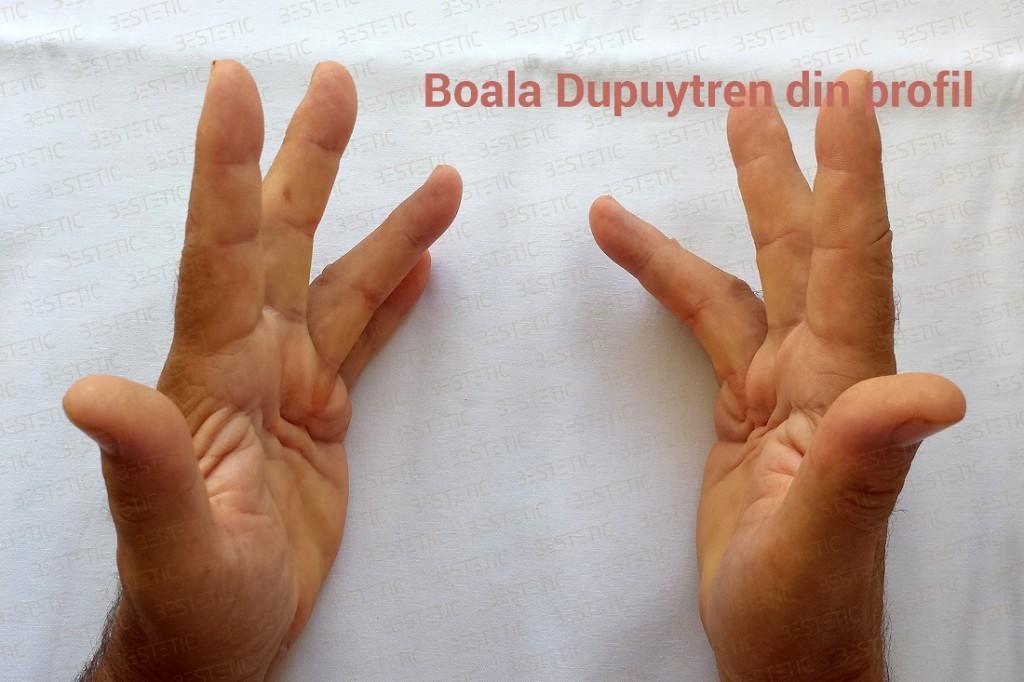 Maladia Dupuytren
