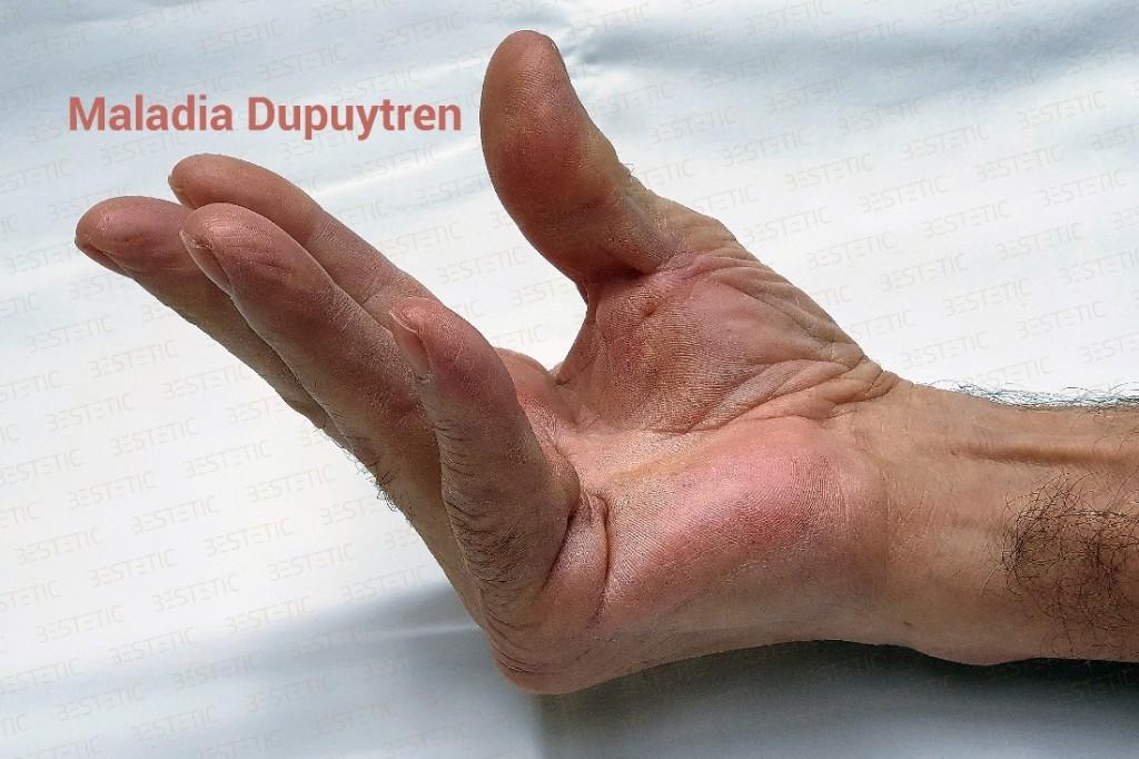 Xiapex tratament fara operatie in maladia Dupuytren