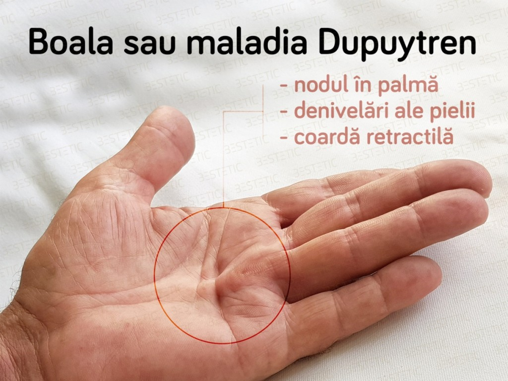 Xiapex fara operatie in Maladia Dupuytren