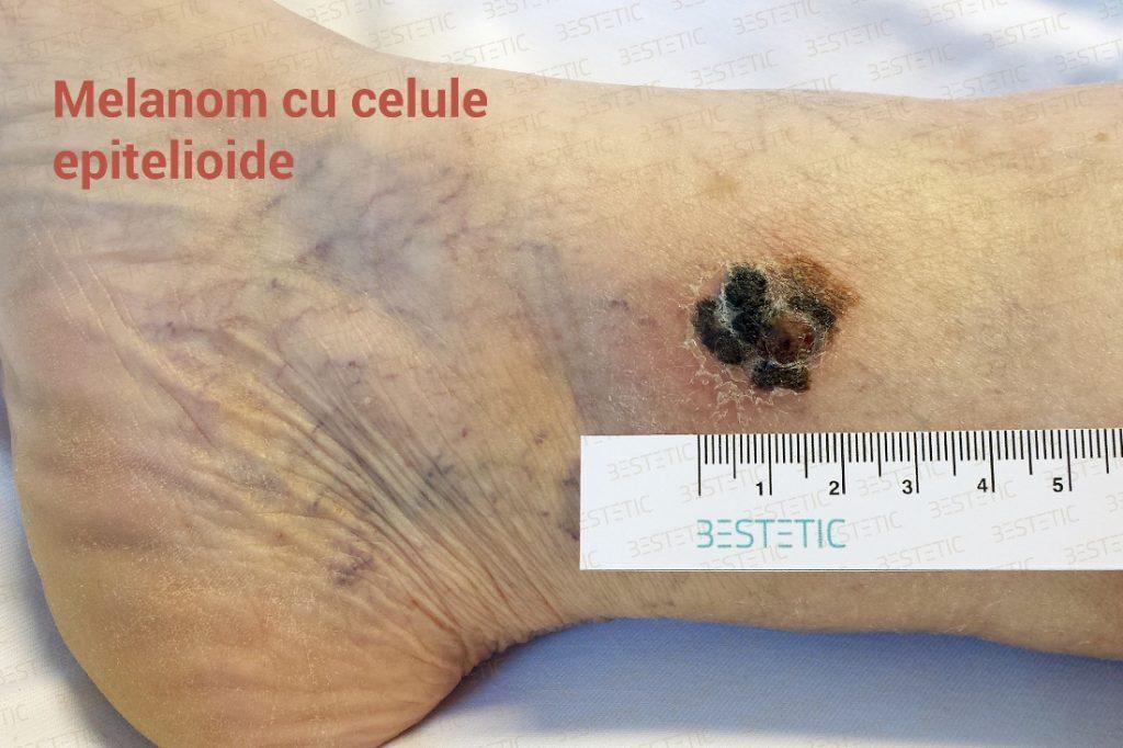 Melanom malign - cancer de piele