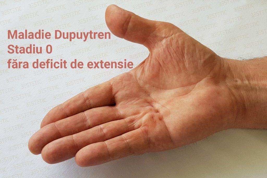 Boala Dupuytren in stadiu 0