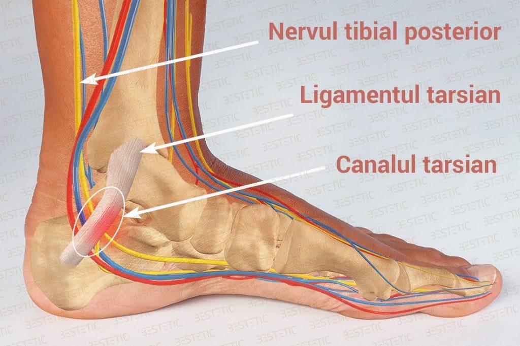 tunel tarsian durere picior