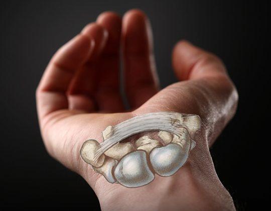 Sindrom de tunel carpian – Anatomie