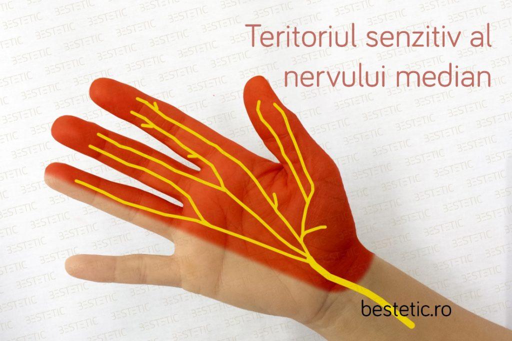 Sindromul de tunel carpian boala de compresie a nervului median