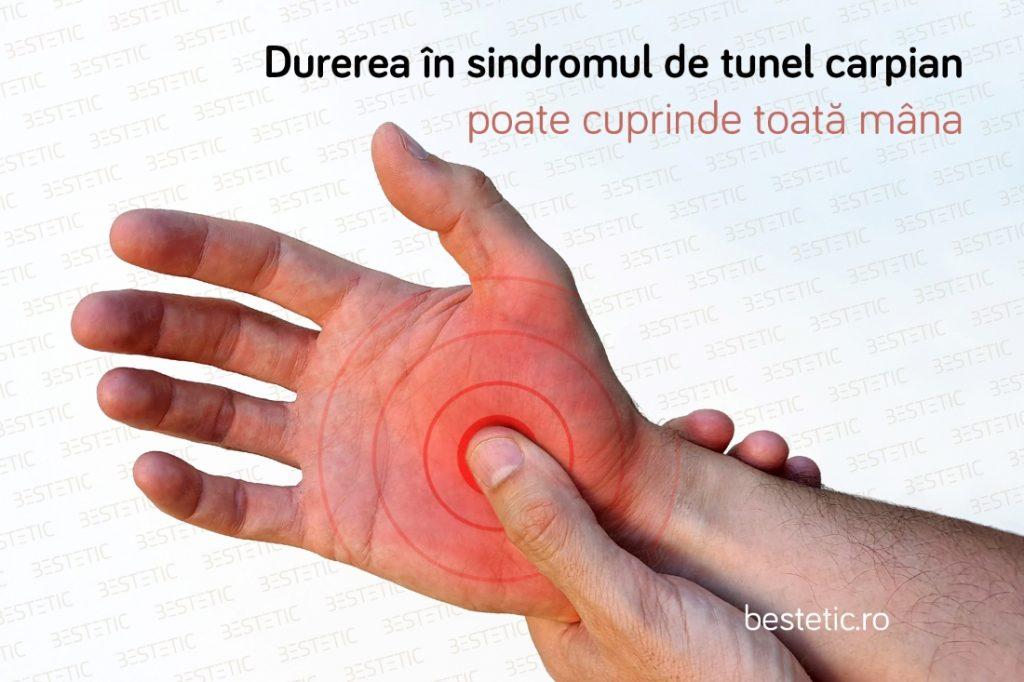 Durere in mana la Sindromul de tunel carpian