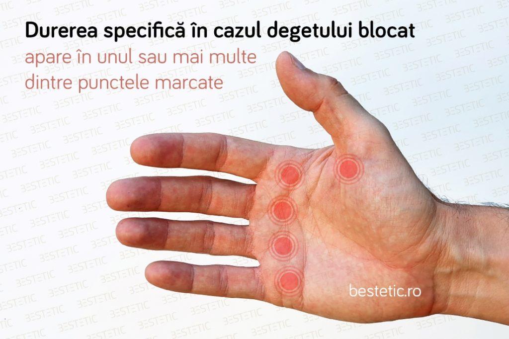 Durere in mana Deget blocat Trigger finger