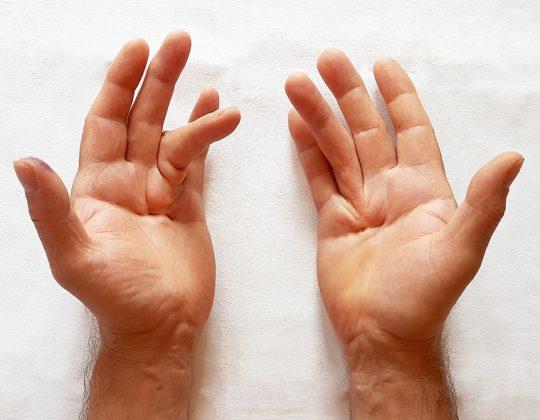 Boala sau Maladia Dupuytren