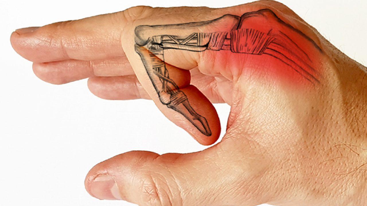 Articulația este umflată pe degetul mic și doare. Problemele articulației pumnului | Ottobock RO