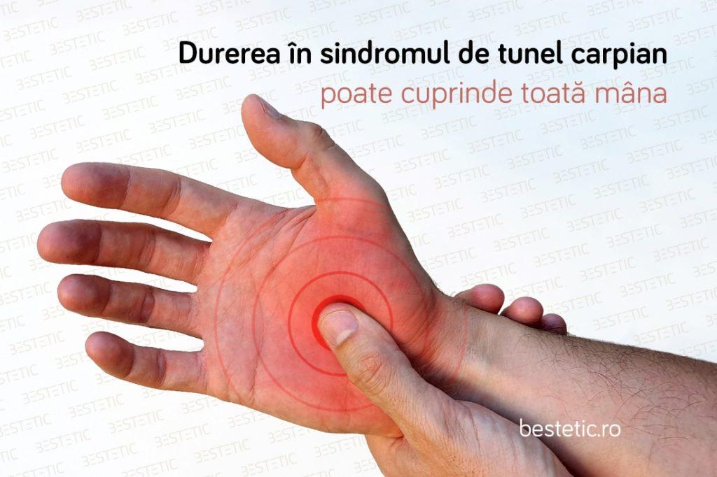 De ce dor incheieturile mainii si degetelor STC