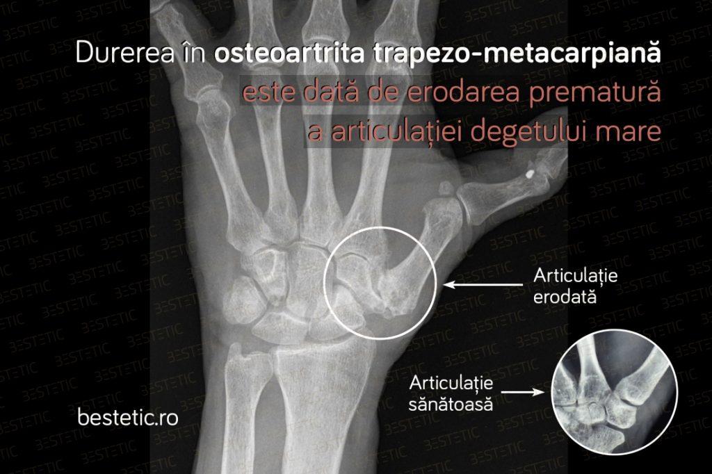 De ce dor incheieturile mainii Reumatism Artrita mana